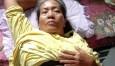 Tak Punya Biaya Operasi, Ibu Miskin Penderita Tumor Rahim Terbaring Lemah